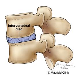 intervertebraldisc